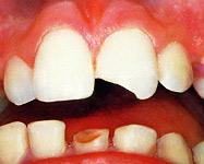 Zahnsportschutz München » Dentallabor Trampert für sichere Zähne