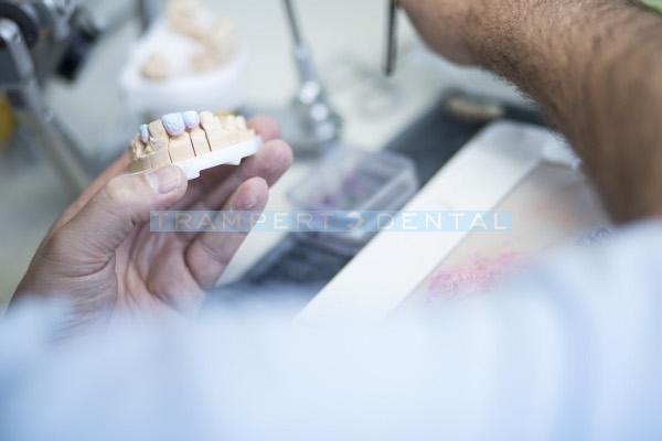 zahnprothese-dentallabor-muenchen-trampert